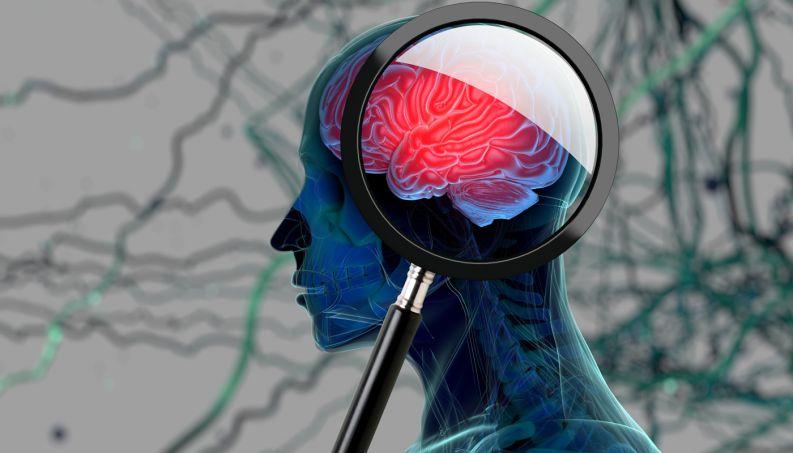 cerebro-cranio-alzheimer-0817-1400x800